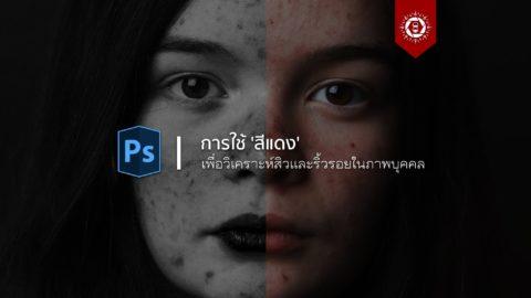 การใช้สีแดงเพื่อวิเคราะห์สิวและริ้วรอยในภาพบุคคล